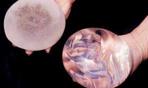Factores que influyen el el precio final de un aumento de pechos