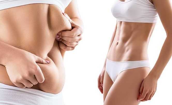 resultados antes y despues diferentes entre lipoescultura y cirugia estetica de abdomen