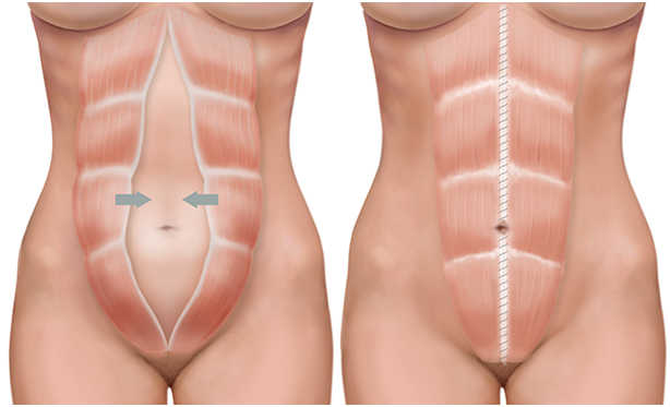 diferencias entre lipoescultura y abdominoplastia