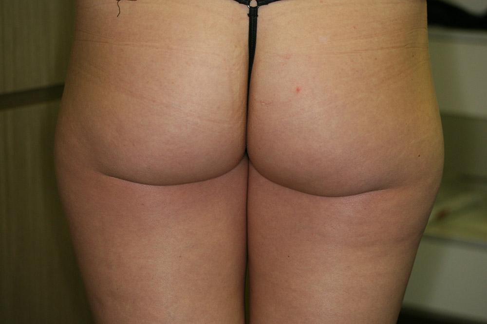 before alidya cellulite treatment